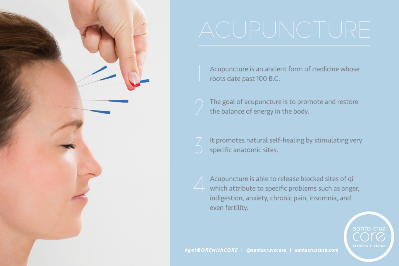 acupuncture-allergy