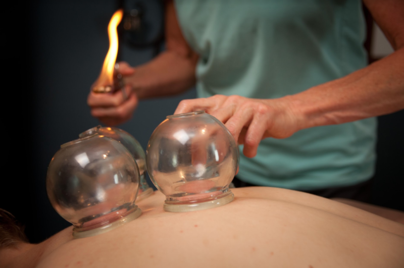 acupuncture-cupping